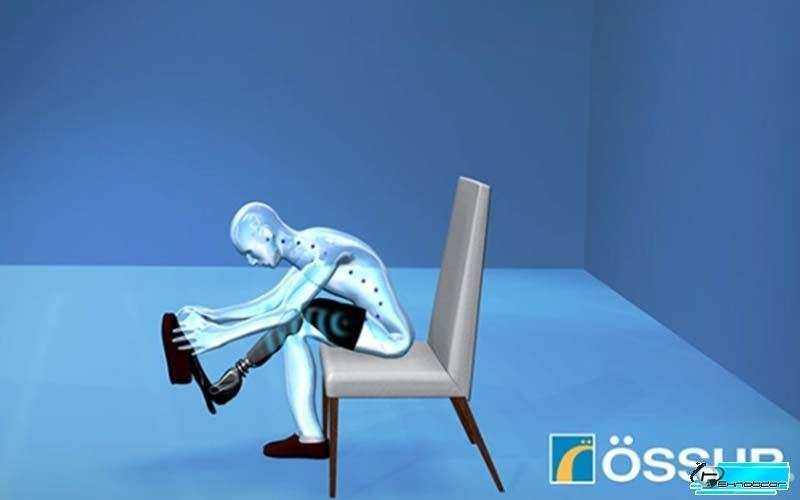 Бионические протезы Ossur